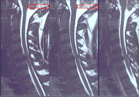 David J. Stewart MRI - Date of Birth: March 5, 1967
