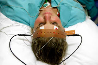 ECT electroconvulsive therapy electroshock Depression Unipolar Treatment-resistant-depression