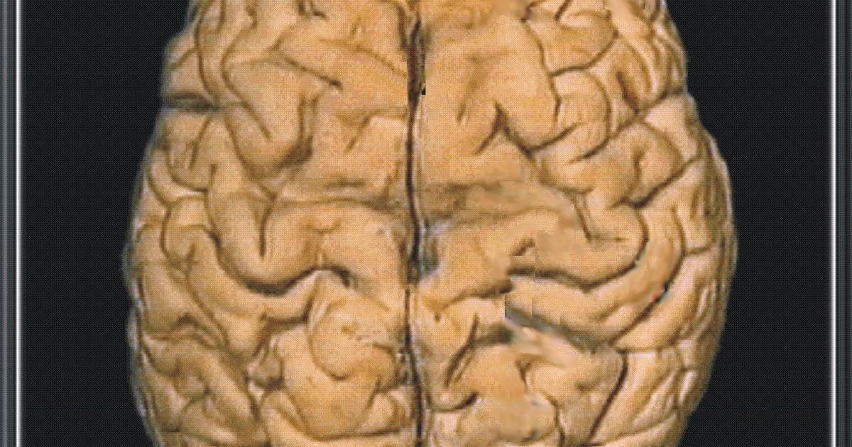 NEUROCIRUGIA: Concepto de NEUROCIRUGIA