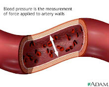 High Pressure on blood vessels