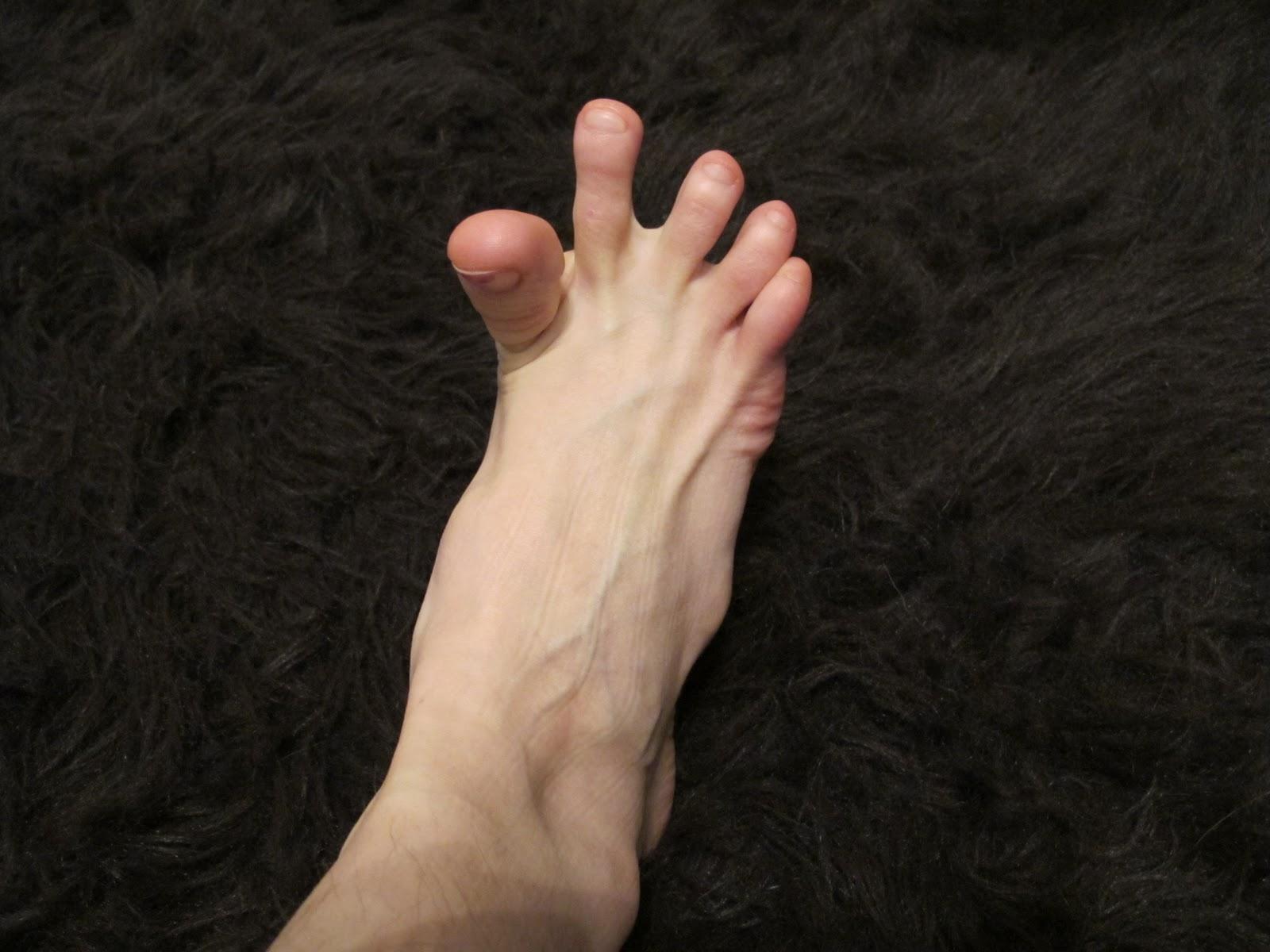 Foot Spasms 4