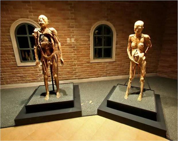 Myth the Human Body Exhibit