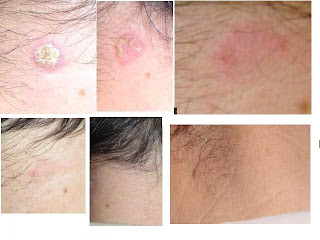 crema pentru dermatita atopica adultification of juveniles