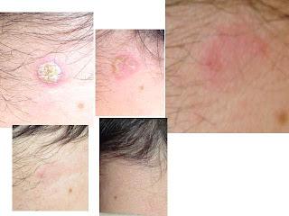 artrita reumatoida tratament homeopat pentru candida