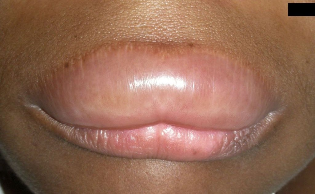 What Causes Swollen Face And Lips