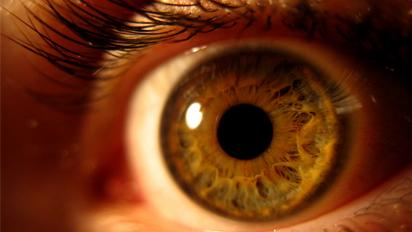 Muitas delas não causam sintomas até que tenham produzido lesão. Por isso  exames médicos realizados regularmente por um oftalmologista são muito  importantes ... d2da0ce3b1