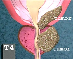 Cancerul de prostată - simptome și tratament