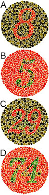What causes colorblindness?