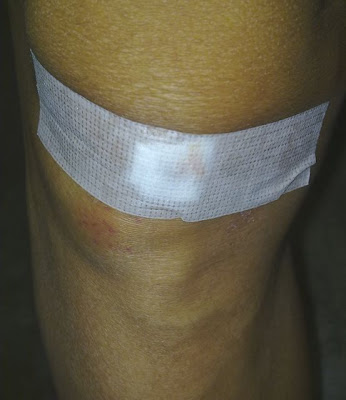 (R) knee superficial wound