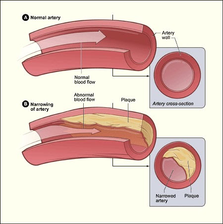 How Diabetes and Hypertension Are Related