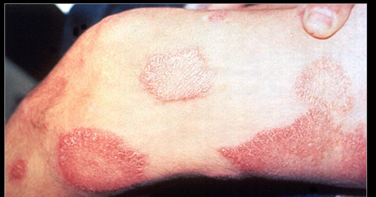 Leprosy Background Pathophysiology Epidemiology