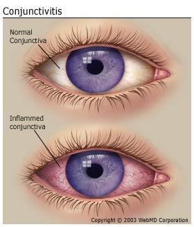 Symptoms Of Allergic Conjunctivitis How To Improve
