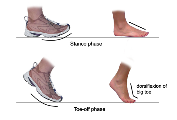 Inner Foot Arch Pain