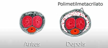 Bioplastia Peniana (Engrossamento Peniano)