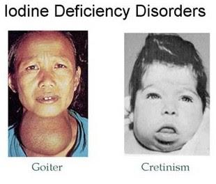 Mbbs Medicine Humanity First Cretinism
