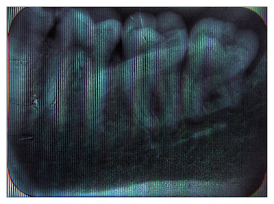 |1/60|f7.1|40mm|ISO 3200|