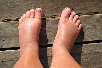 svullna fötter värme
