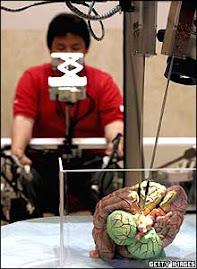 este robot hace cirugias de cerebro manejado por un operador