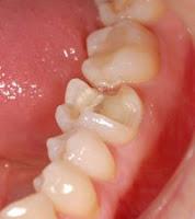 incrustacion dental estetica resina ceramica
