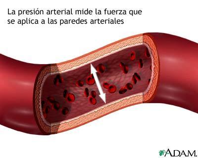 Wiki retinopatía hipertensiva