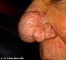 Rhinophyma in Acne Roseace