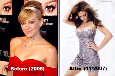 Hilary Duff before and after pictures - did she or didn't she?