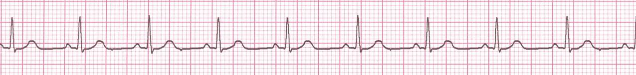 Medical Lecture Notes Online: ECG 2 -How to Analyze a Rhythm