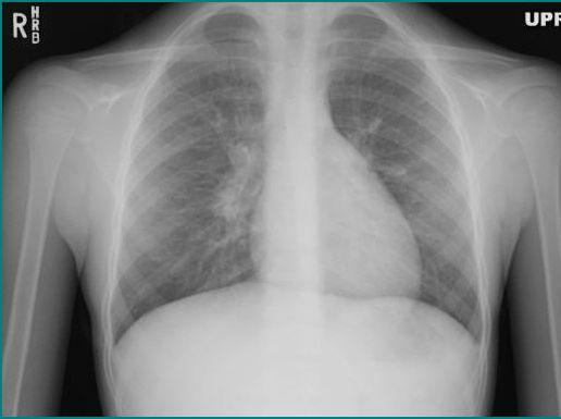 Identify the pathology on this AP and lateral chest x-ray ...