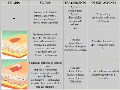 ULCERAS POR PRESION: Definición de úlceras por presión
