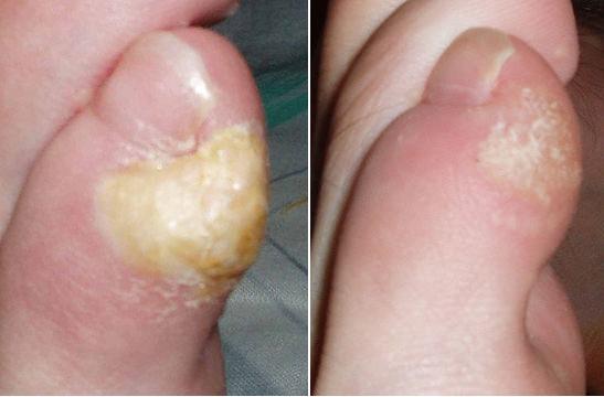 Stroevanka Free Life Style: Disease alert after Leg