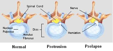 Spinal Disc Herniation Injuries | Minnesota Workers