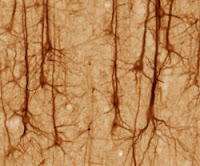 SMI32-stained pyramidal neurons in cerebral cortex, from Wikipedia