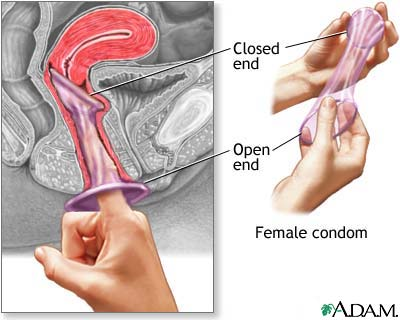 Erst Penisring anziehen, dann Kondom darber, oder