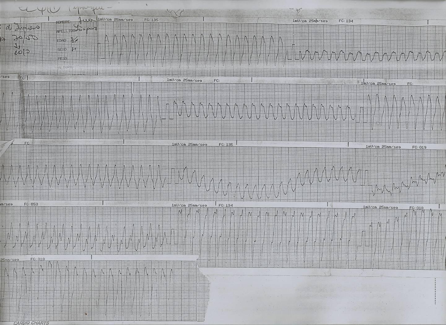 taquicardia ventricular paroxística emedicina diabetes