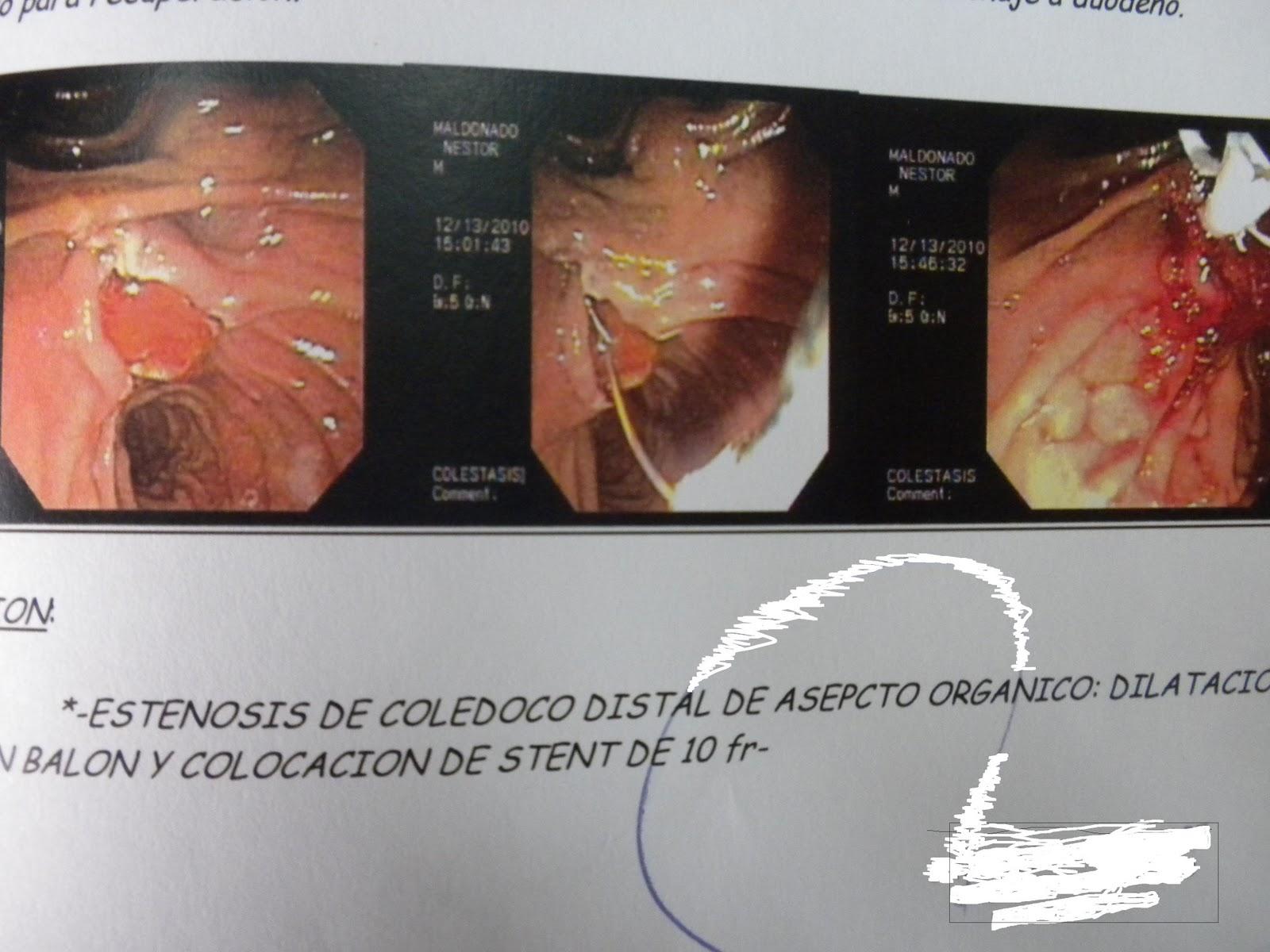 EL RINCÓN DE LA MEDICINA INTERNA: 2010