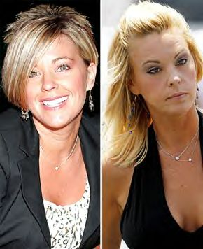 Celebrities with Botox Gone Wrong