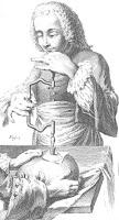 trepanation procedure in the 18th century