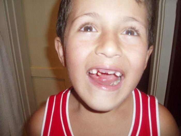 تبریک دندون درآوردن بچه Without teeth. Page 3