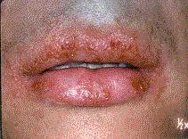 lesiones por herpesvirus tipo 1