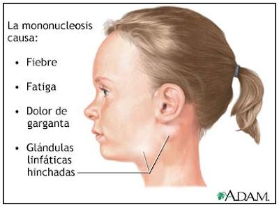 sintomatología de la mononucleosis