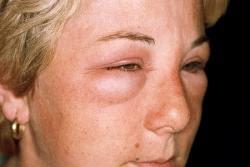 аллергия на лице что делать отзывы