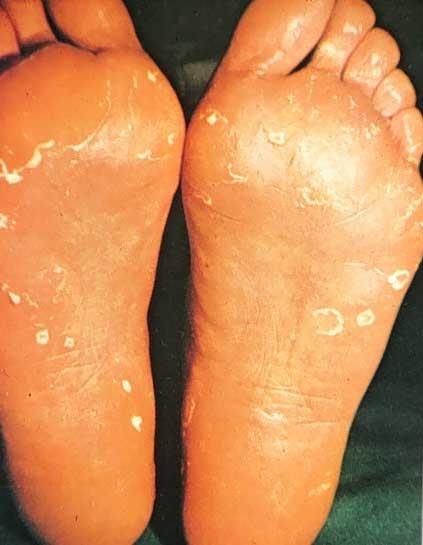 foot type community Bottom