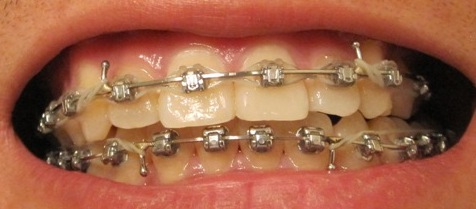 My Journey With The Damon Braces Week 70 With The Damon