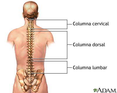 Off topic :  Hernia discal L5-S1
