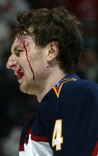 A bloody Braydon Coburn