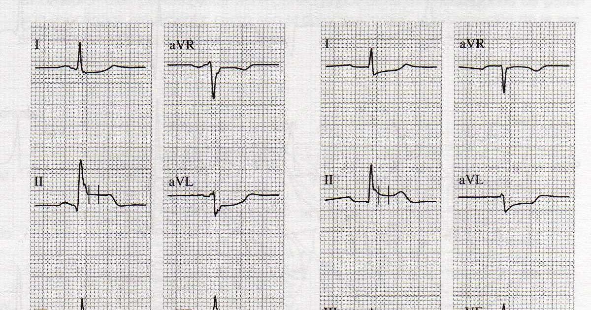 Educación Médica Continua: EKG de práctica