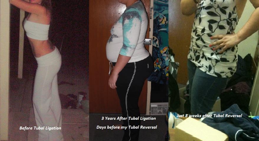Does Tubal Ligation Cause Weight Gain Blog Dandk