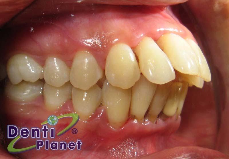 Blog Ortodoncia Dentiplanet Puedo Colocarme Brackets Si Se Me