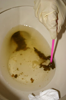 Pictures of Threadworms in Stool http   www pic2fly com Pictures 20of    Threadworms In Human Stool