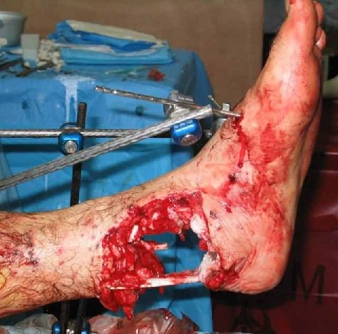 foot eaten by polar bear